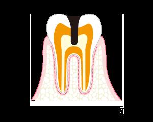 C3-神経に達したむし歯